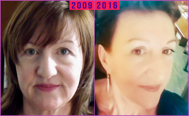 Catherine-Johnson-facial-flex-before-and-after